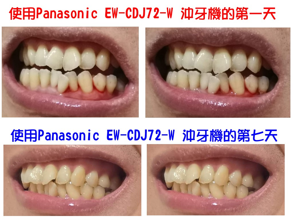 使用Panasonic EW-CDJ72-W 沖牙機使用第一天跟第七天的比較圖