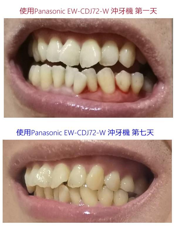 自行摸索治療牙周病的保健預防方法中~!